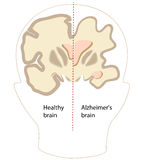 Alzheimer disease. Brain compared to normal, eps8 Stock Photos