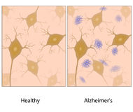 Alzheimer disease brain tissue royalty free illustration