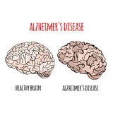 ALZHEIMER Disease Memory Loss Medicine Vector Illustration. ALZHEIMER Disease Memory Loss Brain Damage Medicine Health Treatment Therapy Banner Poster Vector stock illustration