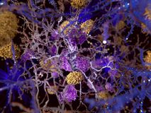 Alzheimer disease, neuron being phagocyted by microglia cells. 3d computer illustration of the Alzheimer disease. The yellow structures are amyloid plaques stock illustration
