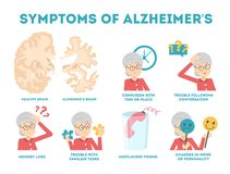 Alzheimer disease symptoms infographic. Memory loss and problem. With brain. Mental health disorder. Old people disease. Isolated vector illustration in cartoon stock illustration