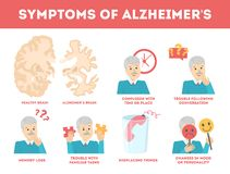 Alzheimer disease symptoms infographic. Memory loss and problem vector illustration