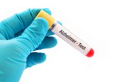Alzheimer disease test. Test tube with blood sample for Alzheimer disease test Stock Images
