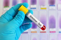 Alzheimer disease test. Test tube with blood sample for Alzheimer disease test Royalty Free Stock Photography