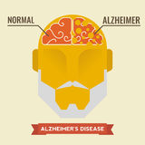 Alzheimer. Illustration of human brain with alzheimer disease concept Royalty Free Stock Images