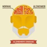 Alzheimer vector illustration
