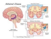 Free Alzheimer`s Disease Royalty Free Stock Photos - 170753418