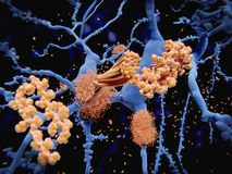 Alzheimer`s disease: the amyloid-beta peptide accumulates to amy stock images