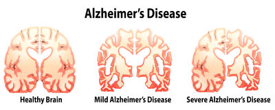 Alzheimer's Disease Stock Images
