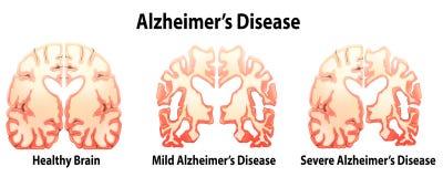 Alzheimer's Disease Stock Images