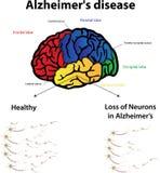 Alzheimer's disease. Labeled diagram, neurons royalty free illustration