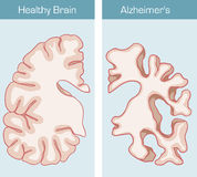 Alzheimer`s Disease. Is a medical condition affecting the brain vector illustration