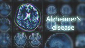 Alzheimer`s disease or Parkinson concept. Blurred MRI scan of brain with glitch effect. Toned royalty free stock photo