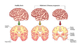 Alzheimer's disease progression. Medical illustration of the symptoms of Alzheimer's disease progression Stock Photography