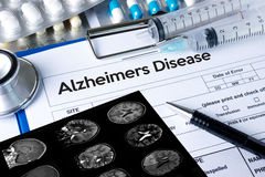 Alzheimers Disease concept , Brain degenerative diseases Parkin. Son royalty free stock photos