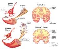 Alzheimers sjukdom vektor illustrationer