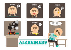 Alzheimers. Stages of Alzheimers dementia disease info graphics. illustration stock illustration