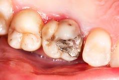 Amalgam filling. Old amalgam restoration and secondary caries in molar teeth stock photos