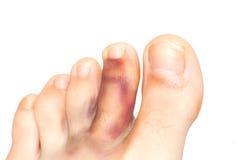 łamany palec u nogi Obrazy Stock