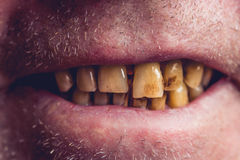 Amarele e curvou os dentes de um fumador coberto com a pedra dental imagens de stock royalty free