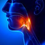 Amídalas - angina pectoris Imagem de Stock