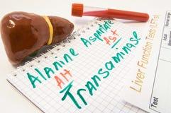 Aminotransferasi inscribed dell'alanina alt e dell'aspartato AST, circondate tramite fegato, i tubi della prova di laboratorio co Fotografia Stock