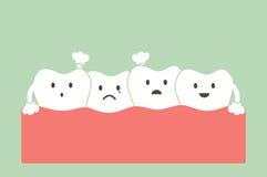 Ammucchiatura della malocclusione dei denti illustrazione di stock
