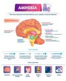 Amnesievektorillustration Beschriftete Gehirngedächtnisverlust-Krankheitsarten entwerfen lizenzfreie abbildung
