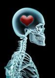 Amor de la radiografía Imágenes de archivo libres de regalías