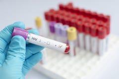 Amostra de sangue do VIH fotos de stock royalty free