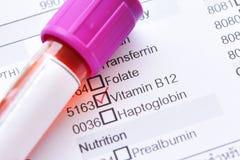Amostra de sangue para o teste da vitamina B12 foto de stock royalty free