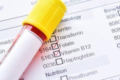 Amostra de sangue para a vitamina B12 e o teste folate imagens de stock royalty free