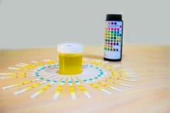 Amostra de urina junto com o uristix da vara do mergulho para analisar a proteína da glicose da urina no diabetes foto de stock royalty free