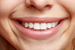 Ampio primo piano sincero delle ragazze di sorriso Denti bianchi Immagini Stock Libere da Diritti