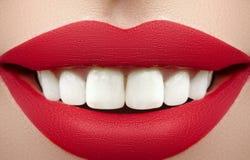 Ampio sorriso di giovane bella donna, denti bianchi sani perfetti Imbiancatura, ortodont, dente di cura e benessere dentari fotografia stock libera da diritti