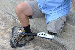 Amputee seated with leg and prosthesis crossed Stock Image