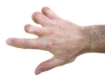 Amputierte Finger Lizenzfreie Stockbilder