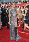 Amy Purdy Stock Images