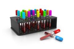 Análisis de sangre del VIH ilustración del vector