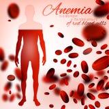 Anämie-und Hämophilie-Hintergrund stock abbildung
