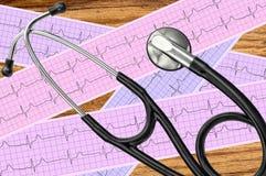 Analisi del cuore, grafico dell'elettrocardiogramma (ECG) e stetoscopio Immagine Stock