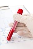 Analisi del sangue Immagine Stock