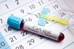 Analisi del sangue per analisi dello PSA Immagini Stock
