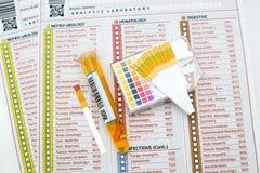 Analisi delle urine Fotografia Stock