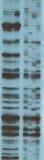 Analys av RNAföljden arkivfoto