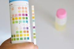Analyse d'urine photographie stock libre de droits
