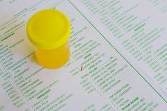 Analyse d'urine Photos stock