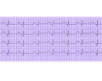 Analyse de coeur, graphique d'électrocardiogramme Photos stock