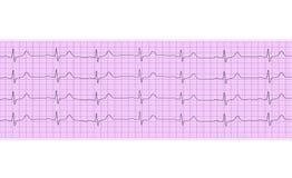 Analyse de coeur, graphique d'électrocardiogramme Photographie stock libre de droits