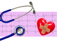 Analyse de coeur, graphique d'électrocardiogramme (ECG) Photo libre de droits